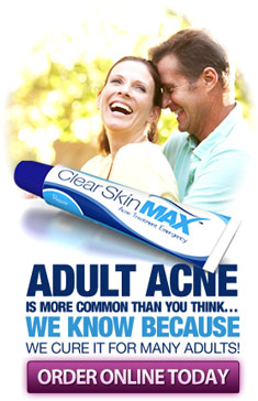 Adult acne is more common than you think. We know because we cure it for many adults!